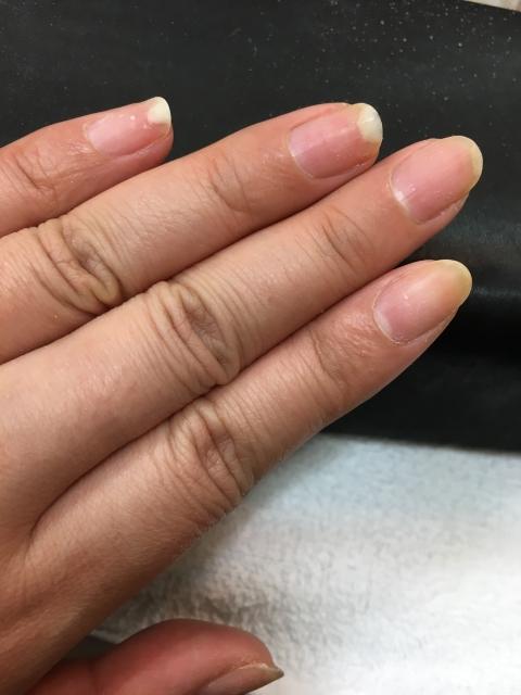 ニベア,爪,伸びる